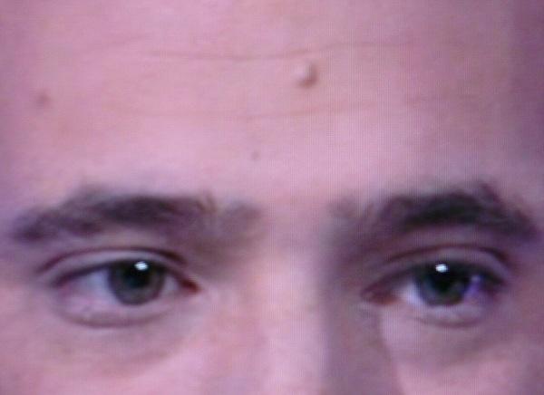 Matt Giraud's Giant Forehead Mole Up Close & Personal
